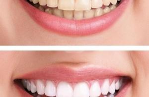Blanqueamiento dental con Luz LED. ¡Reduce hasta 6 tonos el color del diente!