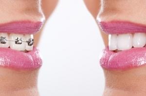 Ortodoncia con brackets metálicos o de zafiro