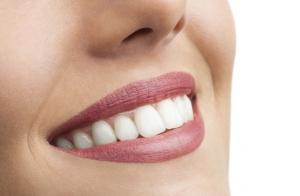 Limpieza bucal con revisión y radiografía o blanqueamiento dental